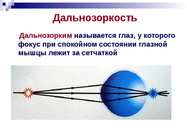 Дальнозоркость  Дальнозорким называется глаз, у которого фокус при спокойном состоянии глазной мышцы лежит за сетчаткой