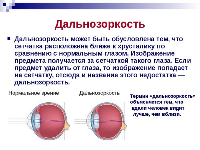 Дальнозоркость Дальнозоркость может быть обусловлена тем, что сетчатка расположена ближе к хрусталику по сравнению с нормальным глазом. Изображение предмета получается за сетчаткой такого глаза. Если предмет удалить от глаза, то изображение попадает на сетчатку, отсюда и название этого недостатка — дальнозоркость. Термин «дальнозоркость» объясняется тем, что  вдали человек видит  лучше, чем вблизи.
