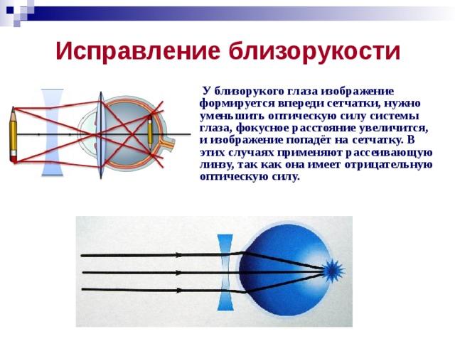 Исправление близорукости  У близорукого глаза изображение формируется впереди сетчатки, нужно уменьшить оптическую силу системы глаза, фокусное расстояние увеличится, и изображение попадёт на сетчатку. В этих случаях применяют рассеивающую линзу, так как она имеет отрицательную оптическую силу.