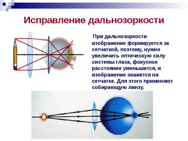 Исправление дальнозоркости  При дальнозоркости изображение формируется за сетчаткой, поэтому, нужно увеличить оптическую силу системы глаза, фокусное расстояние уменьшится, и изображение окажется на сетчатке. Для этого применяют собирающую линзу.