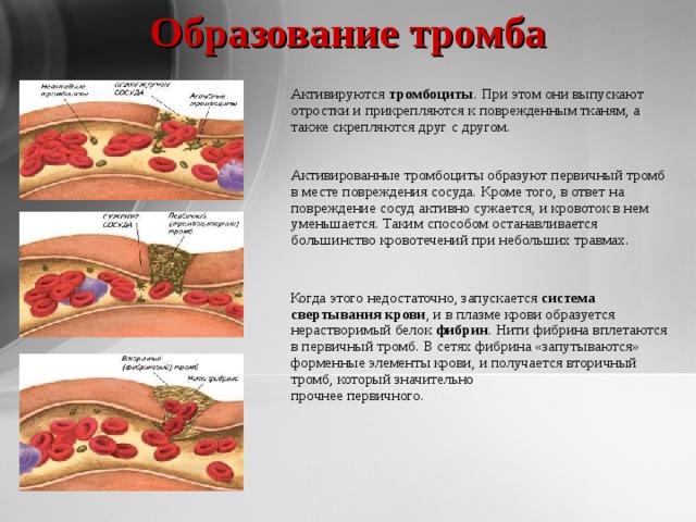 Образование тромба   Активируются тромбоциты . При этом они выпускают отростки и прикрепляются к поврежденным тканям, а также скрепляются друг с другом.    Активированныетромбоцитыобразуют первичный тромб в месте повреждения сосуда. Кроме того, в ответ на повреждение сосуд активно сужается, и кровоток в нем уменьшается. Таким способом останавливается большинство кровотечений при небольших травмах.  Когда этого недостаточно, запускается система свертывания крови , и в плазме крови образуется нерастворимый белок фибрин . Нити фибрина вплетаются в первичный тромб. В сетях фибрина «запутываются» форменные элементы крови, и получается вторичный тромб, который значительно  прочнее первичного.