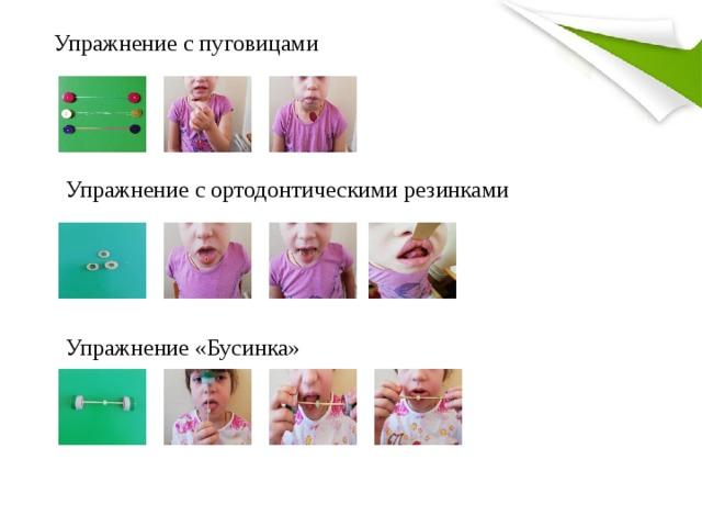 Упражнение с пуговицами Упражнение с ортодонтическими резинками Упражнение «Бусинка»
