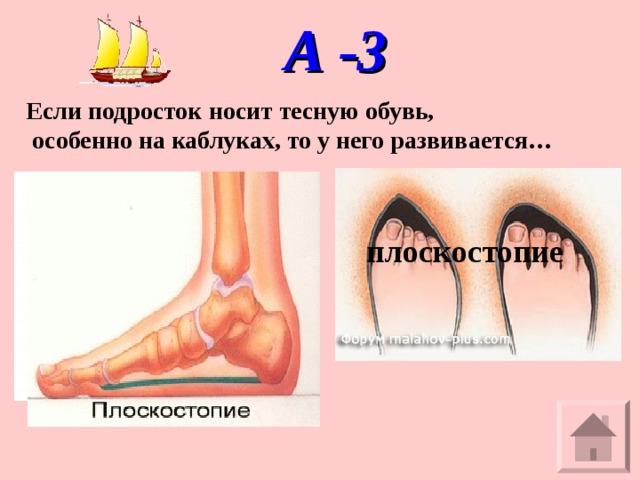А -3 Если подросток носит тесную обувь,  особенно на каблуках, то у него развивается… плоскостопие
