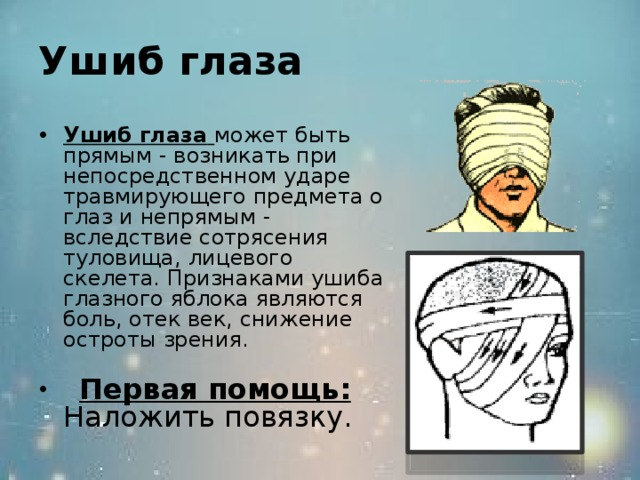 Ушиб глаза