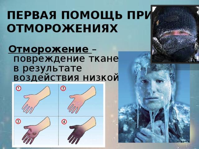 ПЕРВАЯ ПОМОЩЬ ПРИ ОТМОРОЖЕНИЯХ   Отморожение  – повреждение тканей в результате воздействия низкой температуры.