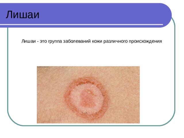 Лишаи Лишаи - это группа заболеваний кожи различного происхождения