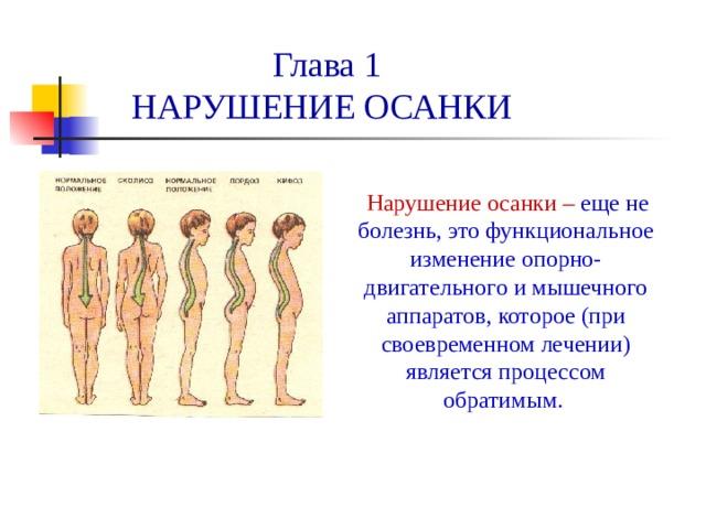 Глава 1  НАРУШЕНИЕ ОСАНКИ  Нарушение осанки – еще не болезнь, это функциональное изменение опорно-двигательного и мышечного аппаратов, которое (при своевременном лечении) является процессом обратимым.