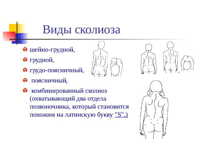 Виды сколиоза шейно-грудной, грудной, грудо-поясничный,  поясничный,  комбинированный сколиоз  (охватывающий два отдела  позвоночника, который становится  похожим на латинскую букву