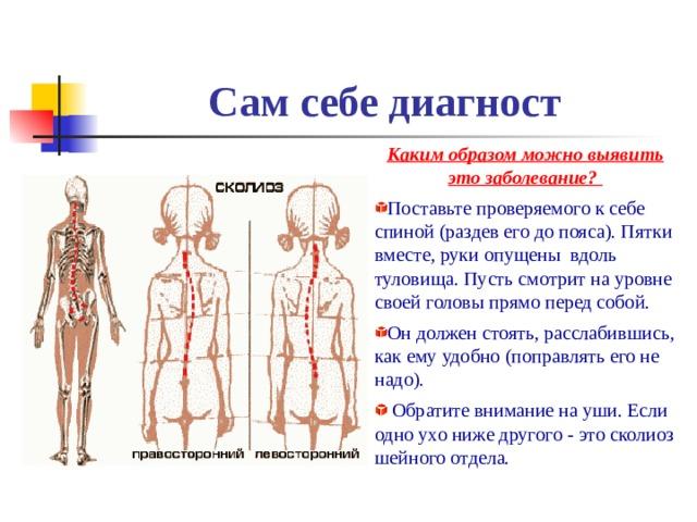 Сам себе диагност Каким образом можно выявить это заболевание? Поставьте проверяемого к себе спиной (раздев его до пояса). Пятки вместе, руки опущены вдоль туловища. Пусть смотрит на уровне своей головы прямо перед собой. Он должен стоять, расслабившись, как ему удобно (поправлять его не надо).  Обратите внимание на уши. Если одно ухо ниже другого - это сколиоз шейного отдела.