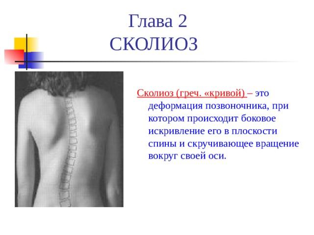 Глава 2  СКОЛИОЗ Сколиоз (греч. «кривой) – это деформация позвоночника, при котором происходит боковое искривление его в плоскости спины и скручивающее вращение вокруг своей оси .