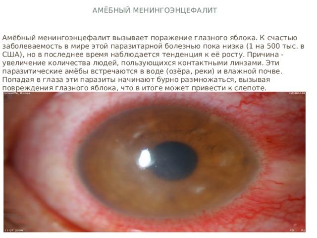 Амёбный менингоэнцефалит Амёбный менингоэнцефалит вызывает поражение глазного яблока. К счастью заболеваемость в мире этой паразитарной болезнью пока низка (1 на 500 тыс. в США), но в последнее время наблюдается тенденция к её росту. Причина - увеличение количества людей, пользующихся контактными линзами. Эти паразитические амёбы встречаются в воде (озёра, реки) и влажной почве. Попадая в глаза эти паразиты начинают бурно размножаться, вызывая повреждения глазного яблока, что в итоге может привести к слепоте.