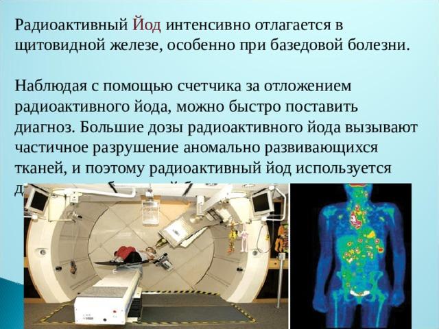 Радиоактивный Йод интенсивно отлагается в щитовидной железе, особенно при базедовой болезни. Наблюдая с помощью счетчика за отложением радиоактивного йода, можно быстро поставить диагноз. Большие дозы радиоактивного йода вызывают частичное разрушение аномально развивающихся тканей, и поэтому радиоактивный йод используется для лечения базедовой болезни .