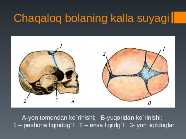 Chaqaloq bolaning kalla suyagi A-yon tomondan ko`rinishi; B-yuqoridan ko`rinishi;  1 – peshona liqindog`I; 2 – ensa liqildg`I; 3- yon liqildoqlar