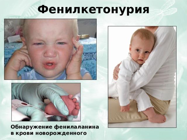 Фенилкетонурия Обнаружение фенилаланина в крови новорожденного