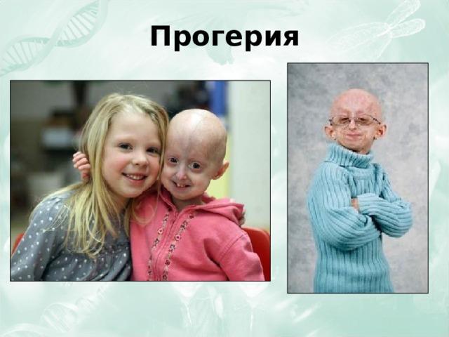 Прогерия