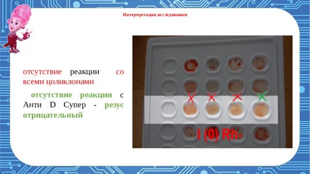 Интерпретация исследования    реакция агглютинации с анти-В и анти-АВ - 3 группа крови . Оценка резус принадлежности:  резус положительный