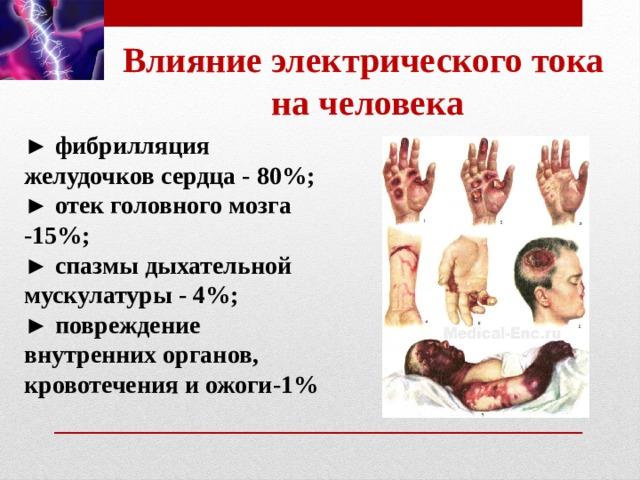 Влияние электрического тока  на человека ► фибрилляция желудочков сердца - 80%; ► отек головного мозга -15%; ► спазмы дыхательной мускулатуры - 4%; ► повреждение внутренних органов, кровотечения и ожоги-1%