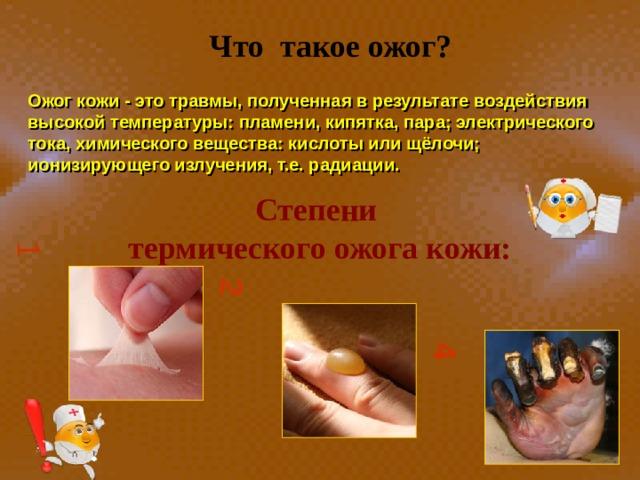 1 2 4 Что такое ожог?  Ожог кожи - это травмы, полученная в результате воздействия высокой температуры: пламени, кипятка, пара; электрического тока, химического вещества: кислоты или щёлочи; ионизирующего излучения, т.е. радиации. Степени термического ожога кожи: