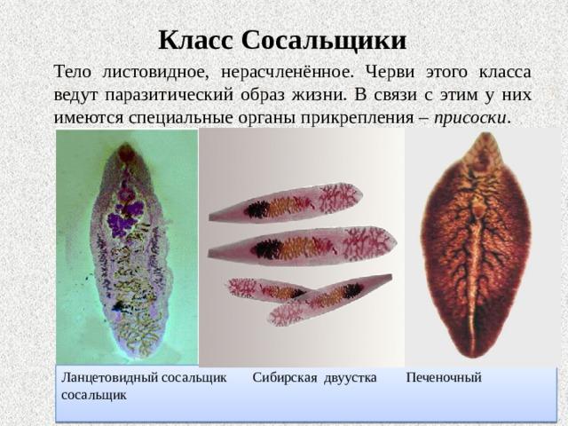 Класс Сосальщики  Тело листовидное, нерасчленённое. Черви этого класса ведут паразитический образ жизни. В связи с этим у них имеются специальные органы прикрепления – присоски . Ланцетовидный сосальщик Сибирская двуустка Печеночный сосальщик