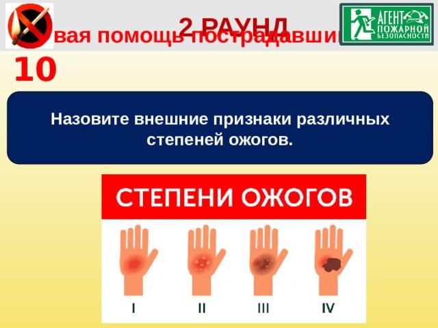 2 РАУНД Первая помощь пострадавшим   10 Назовите внешние признаки различных степеней ожогов.