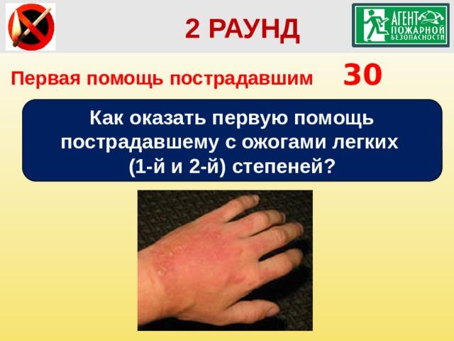 2 РАУНД Первая помощь пострадавшим  30 Как оказать первую помощь пострадавшему с ожогами легких (1-й и 2-й) степеней?