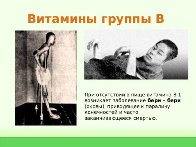 Витамины группы В При отсутствии в пище витамина В 1 возникает заболевание бери – бери (оковы), приводящее к параличу конечностей и часто заканчивающееся смертью.