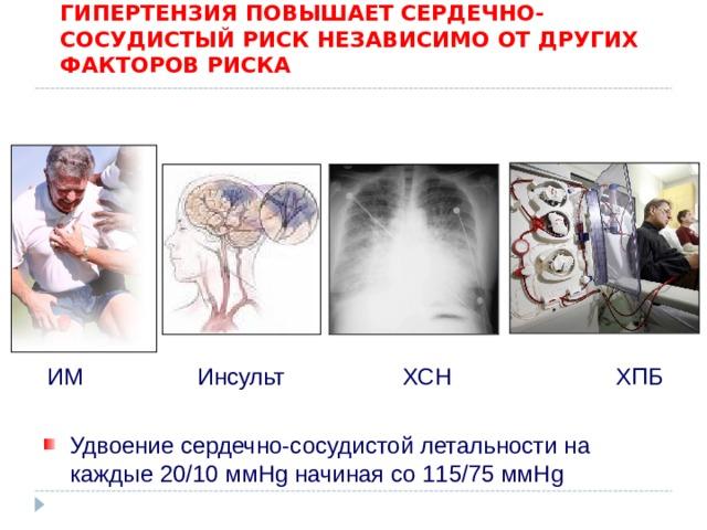 Артериальная гипертензия статистика инсульт