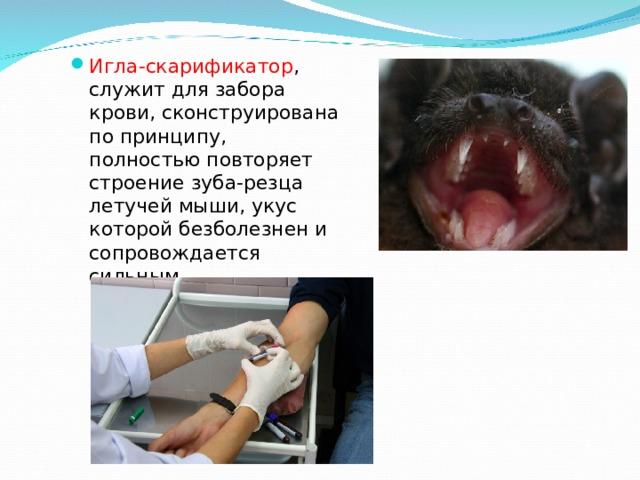 Игла-скарификатор , служит для забора крови, сконструирована по принципу, полностью повторяет строение зуба-резца летучей мыши, укус которой безболезнен и сопровождается сильным кровотечением.
