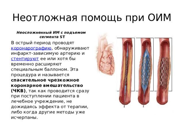 Неотложная помощь при ОИМ Неосложненный ИМ с подъемом сегмента SТ В острый период проводят коронарографию , обнаруживают инфаркт-зависимую артерию и стентируют ее или хотя бы временно расширяют специальным баллоном. Эта процедура и называется спасительное чрезкожное коронарное вмешательство (ЧКВ) , так как проводится сразу при поступлении пациента в лечебное учреждение, не дожидаясь эффекта от терапии, либо когда другие методы уже исчерпаны.
