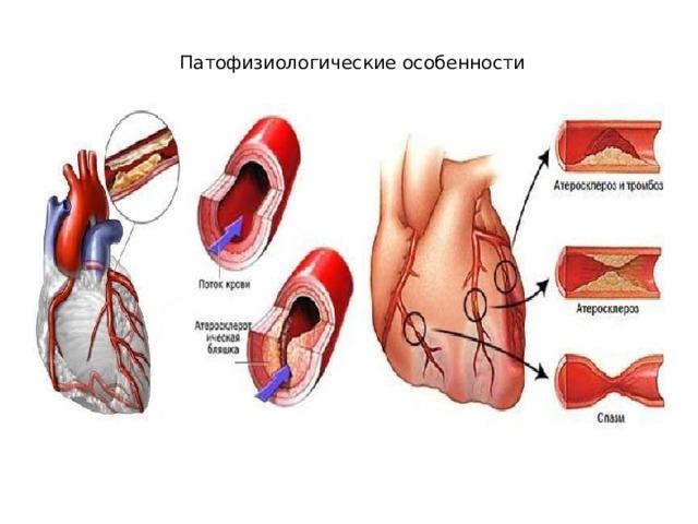 Патофизиологические особенности