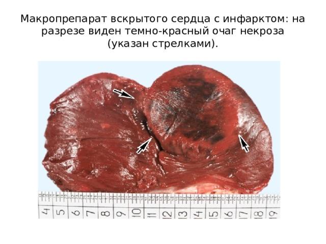 Макропрепарат вскрытого сердца с инфарктом: на разрезе виден темно-красный очаг некроза (указан стрелками).