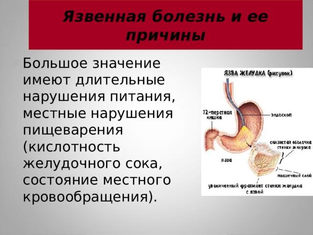Язвенная болезнь и ее причины