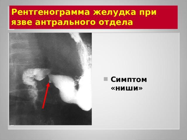 Рентгенограмма желудка при язве антрального отдела