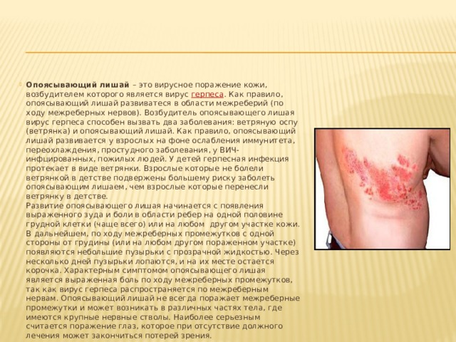 Опоясывающий лишай – это вирусное поражение кожи, возбудителем которого является вирус герпеса