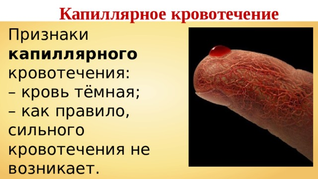 Капиллярное кровотечение Признаки капиллярного кровотечения: – кровь тёмная; – как правило, сильного кровотечения не возникает.