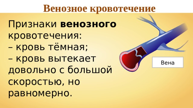 Венозное кровотечение Признаки венозного кровотечения: – кровь тёмная; – кровь вытекает довольно с большой скоростью, но равномерно. Вена