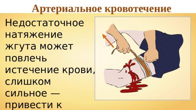 Артериальное кровотечение Недостаточное натяжение жгута может повлечь истечение крови, слишком сильное — привести к некрозу тканей.