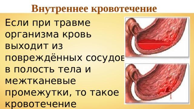 Внутреннее кровотечение Если при травме организма кровь выходит из повреждённых сосудов в полость тела и межтканевые промежутки, то такое кровотечение называют внутренним .