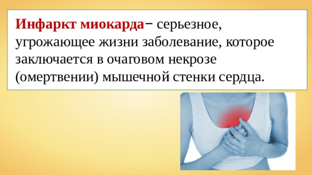 Инфаркт миокарда − серьезное, угрожающее жизни заболевание, которое заключается в очаговом некрозе (омертвении) мышечной стенки сердца.