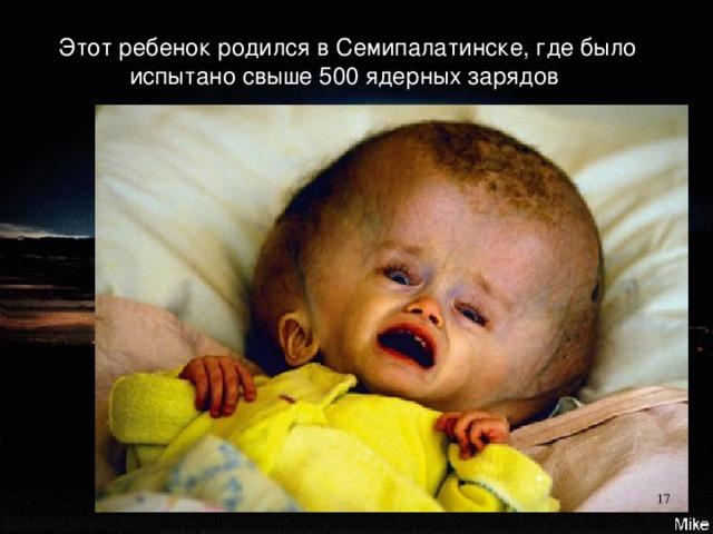 Этот ребенок родился в Семипалатинске, где было испытано свыше 500 ядерных зарядов