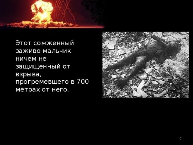Этот сожженный заживо мальчик ничем не защищенный от взрыва, прогремевшего в 700 метрах от него.