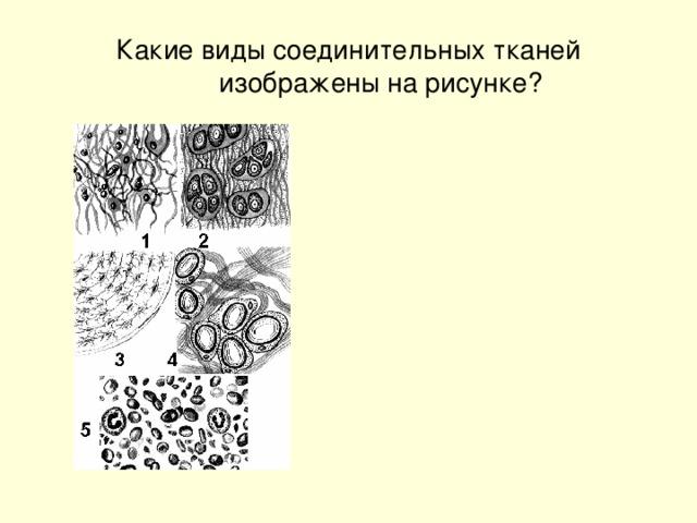 Какие виды соединительных тканей изображены на рисунке?