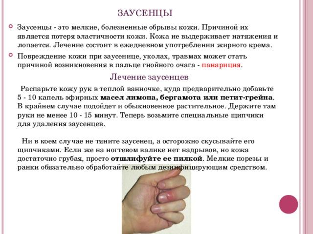 ЗАУСЕНЦЫ Заусенцы - это мелкие, болезненные обрывы кожи. Причиной их является потеря эластичности кожи. Кожа не выдерживает натяжения и лопается. Лечение состоит в ежедневном употреблении жирного крема. Повреждение кожи при заусенице, уколах, травмах может стать причиной возникновения в пальце гнойного очага - панариция .  Лечение заусенцев  Распарьте кожу рук в теплой ванночке, куда предварительно добавьте 5 - 10 капель эфирных масел лимона, бергамота или петит-грейна . В крайнем случае подойдет и обыкновенное растительное. Держите там руки не менее 10 - 15 минут. Теперь возьмите специальные щипчики для удаления заусенцев.     Ни в коем случае не тяните заусенец, а осторожно скусывайте его щипчиками. Если же на ногтевом валике нет надрывов, но кожа достаточно грубая, просто отшлифуйте ее пилкой . Мелкие порезы и ранки обязательно обработайте любым дезинфицирующим средством.