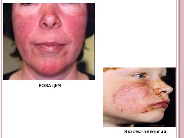 РОЗАЦЕЯ Экзема-аллергия