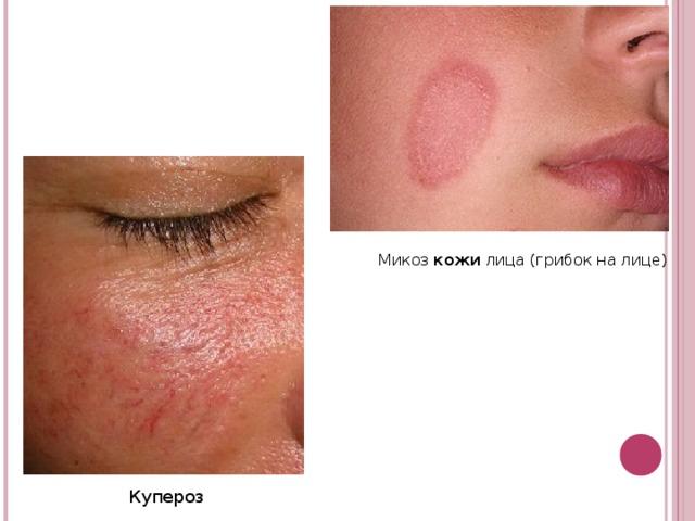 Микоз кожи лица (грибок на лице) Купероз