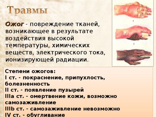 Ожог - повреждение тканей, возникающее в результате воздействия высокой температуры, химических веществ, электрического тока, ионизирующей радиации. Степени ожогов: I ст. - покраснение, припухлость, болезненность II ст. - появление пузырей IIIa ст. - омертвение кожи, возможно самозаживление IIIb ст. - самозаживление невозможно IV ст. - обугливание