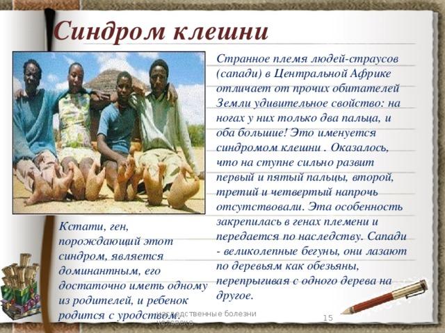 Синдром клешни Странное племя людей-страусов (сапади) в Центральной Африке отличает от прочих обитателей Земли удивительное свойство: на ногах у них только два пальца, и оба большие! Это именуется синдромом клешни . Оказалось, что на ступне сильно развит первый и пятый пальцы, второй, третий и четвертый напрочь отсутствовали. Эта особенность закрепилась в генах племени и передается по наследству. Сапади - великолепные бегуны, они лазают по деревьям как обезьяны, перепрыгивая с одного дерева на другое. Кстати, ген, порождающий этот синдром, является доминантным, его достаточно иметь одному из родителей, и ребенок родится с уродством . 7 наследственные болезни человека