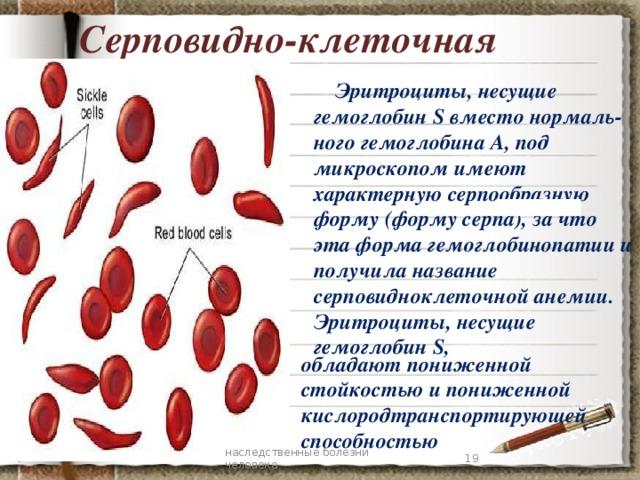 Серповидно-клеточная анемия  Эритроциты, несущие гемоглобин S вместо нормаль-ного гемоглобина А, под микроскопом имеют характерную серпообразную форму (форму серпа), за что эта форма гемоглобинопатии и получила название серповидноклеточной анемии. Эритроциты, несущие гемоглобин S,   обладают пониженной стойкостью и пониженной кислородтранспортирующей способностью 7 наследственные болезни человека