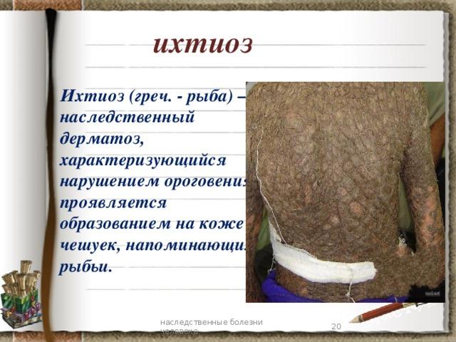 ихтиоз Ихтиоз (греч. - рыба)— наследственный дерматоз, характеризующийся нарушением ороговения, проявляется образованием на коже чешуек, напоминающих рыбьи. 7 наследственные болезни человека