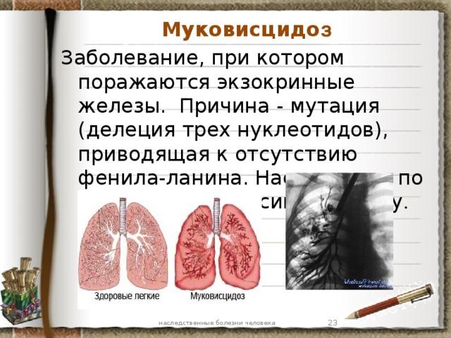 Муковисцидо з Заболевание, при котором поражаются экзокринные железы. Причина - мутация (делеция трех нуклеотидов), приводящая к отсутствию фенила-ланина. Наследуется по аутосомно-рецессивному типу . наследственные болезни человека 7 7